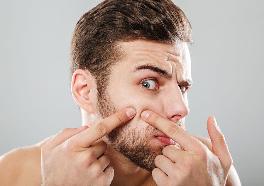qué tipo de acné